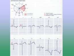Miscellaneous EKG Changes Chapter 14