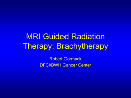 Image Guided Radiation Therapy: Brachytherapy - NA