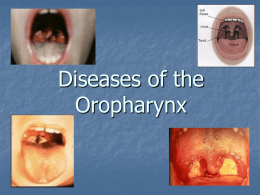 Diseases of the Oropharynx