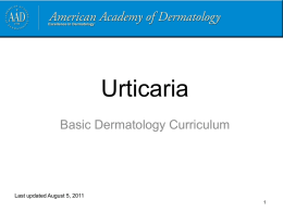 Urticaria - American Academy of Dermatology