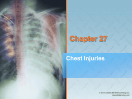 AAOS Chap 27 Chest Injuries PPT