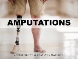amputations - people.stfx.ca